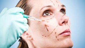 Tissue Removed During Facelifts Can Be Used for Lip Augmentation