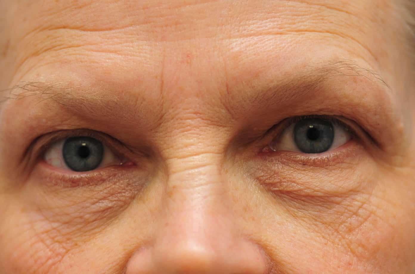 Laser Eyelid Surgery – Warren M  Lent, MD, FACS